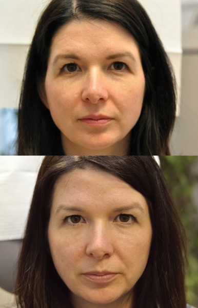 botox for beginners