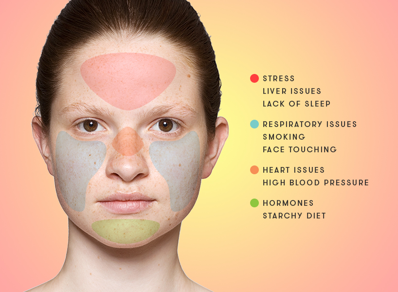 Acne causes: Face mapping can help you determine what's really causing your acne